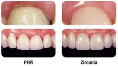 Zirconia versus Traditional Porcelain Dental Restorations ...