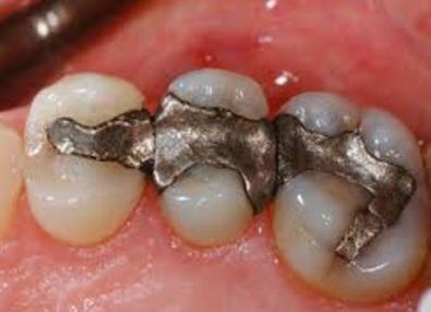 Bahaya Menambal Gigi Dengan Amalgam
