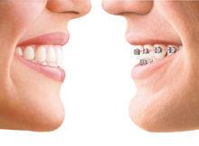Mau Pasang Braket Gigi? WAJIB Dengan Dokter Gigi