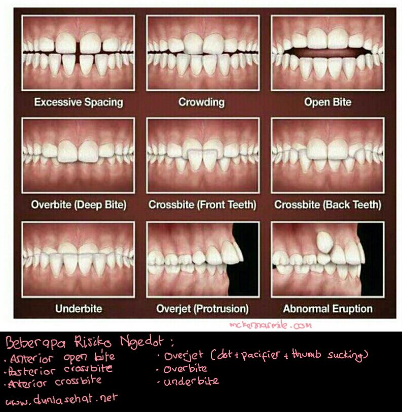 hisap-gigi-2