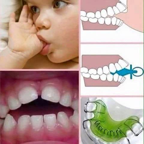 hisap-gigi