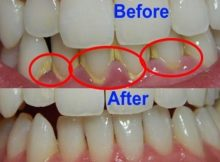 7 Cara Gampang Cegah Munculnya Karang Gigi