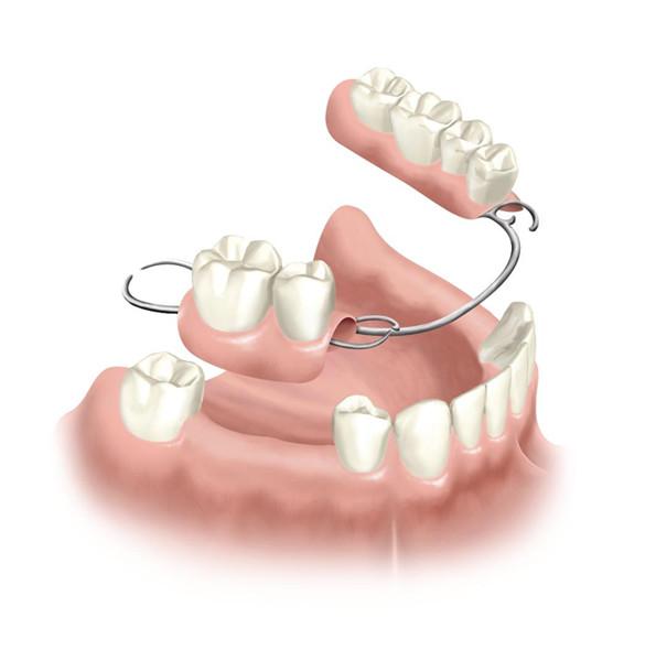 Pentingnya Pembuatan Gigi Tiruan Lepasan Sesuai Dengan Kebutuhan Pasien