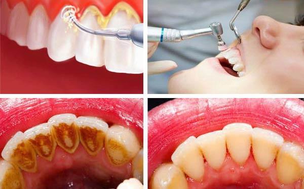 Ini 4 Alasan Kamu Harus Scaling Karang Gigi
