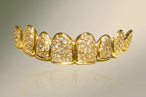 The World's Most Expensive Smile $152,700