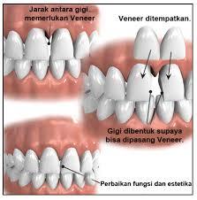 apa itu veneer gigi dental id rh dental id apakah itu veneer gigi apa itu veneer gigi dan berapa biayanya
