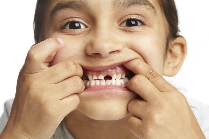 Hasil Penelitian : ASI Tingkatkan Risiko Kerusakan Gigi Parah Pada Anak