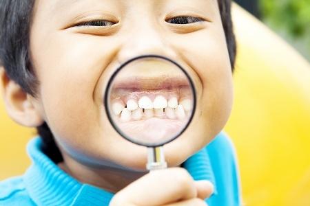 Penyebab Gigi Tetap Anak Tumbuh Berantakan