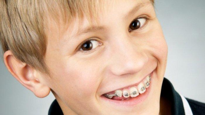 Kapan Sebenarnya Anak Diperbolehkan Menggunakan Kawat Gigi?