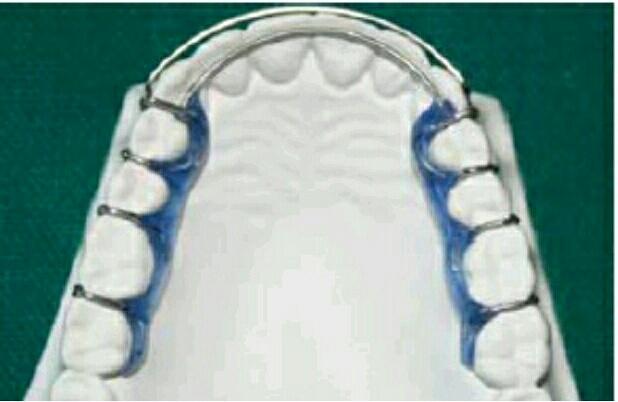 Retainer Kansal: Sebuah Retainer Ortodontik Lepasan Tooth-Borne
