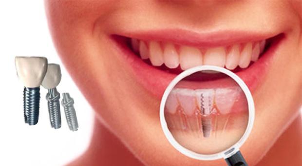 Adakah Resiko Yang Dapat Terjadi Pada Saat Pemasangan Implan gigi?