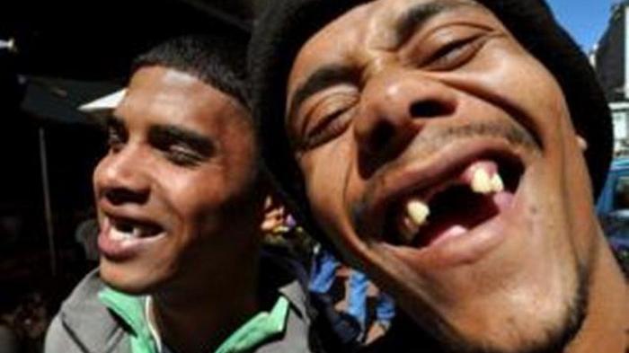 Dampak Buruk Kehilangan Gigi Tanpa Digantikan Gigi Tiruan (Gigi Palsu)